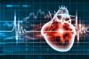 Изображение В кардиологических приборах применят нанотехнологии