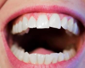 Испытано новое средство с наночастицами металла для очистки полости рта от бактерий.